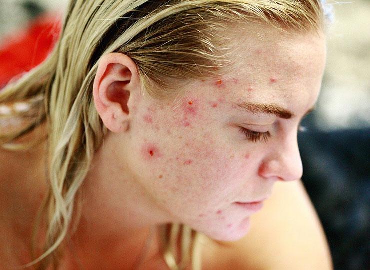 Aloe Vera bei Akne